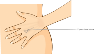 Le remodelage des mains